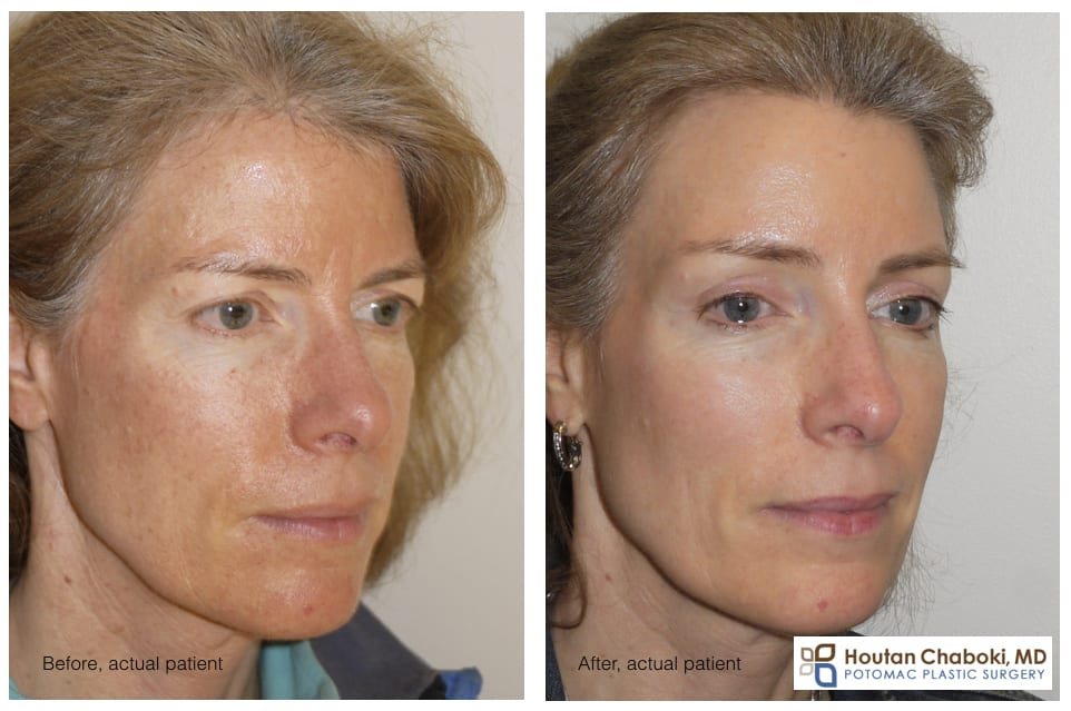 Blog post - limited incision brow lift endoscopic forehead lift