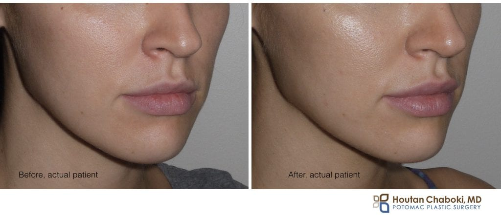 Blog post - prejuvenation prevention face wrinkle aging Botox filler skin care