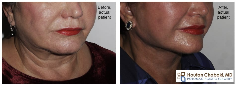 Blog post - before after facelift photo neck lift cosmetic facial surgery beauty