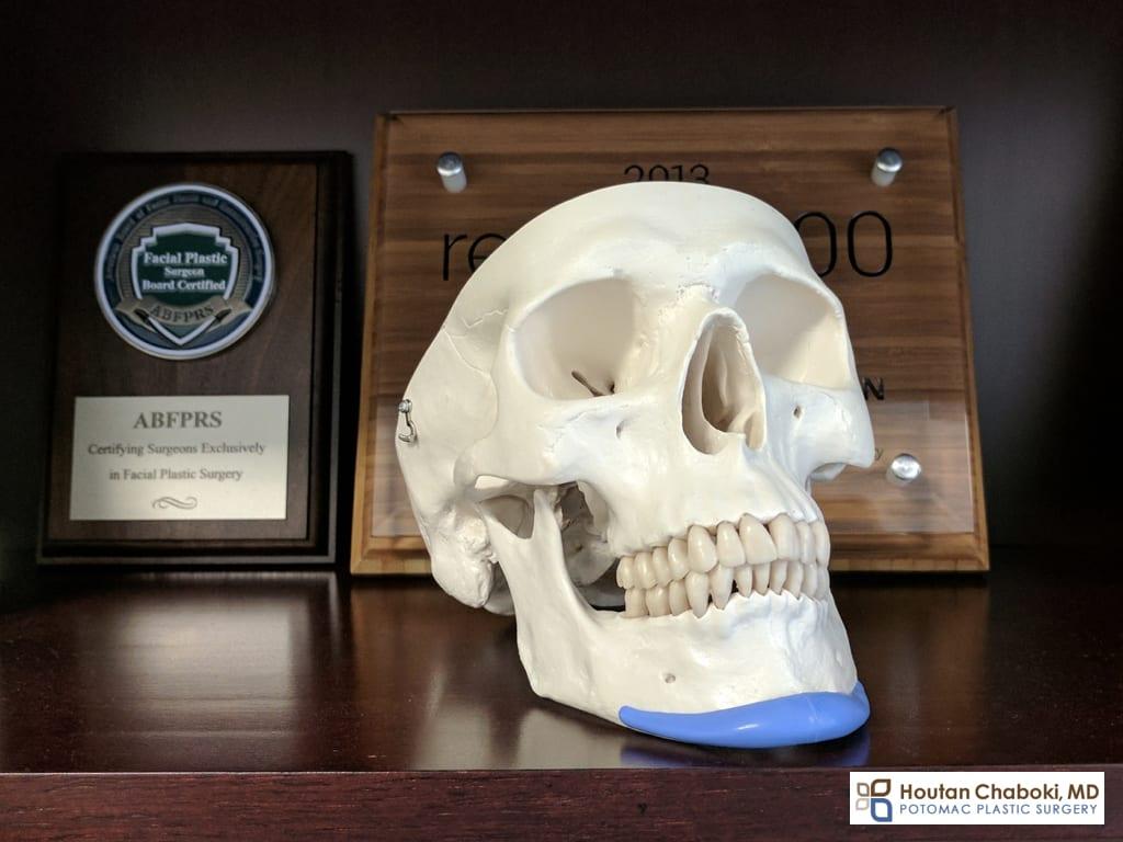 Blog post - chin implant vs facial filler augmentation photos