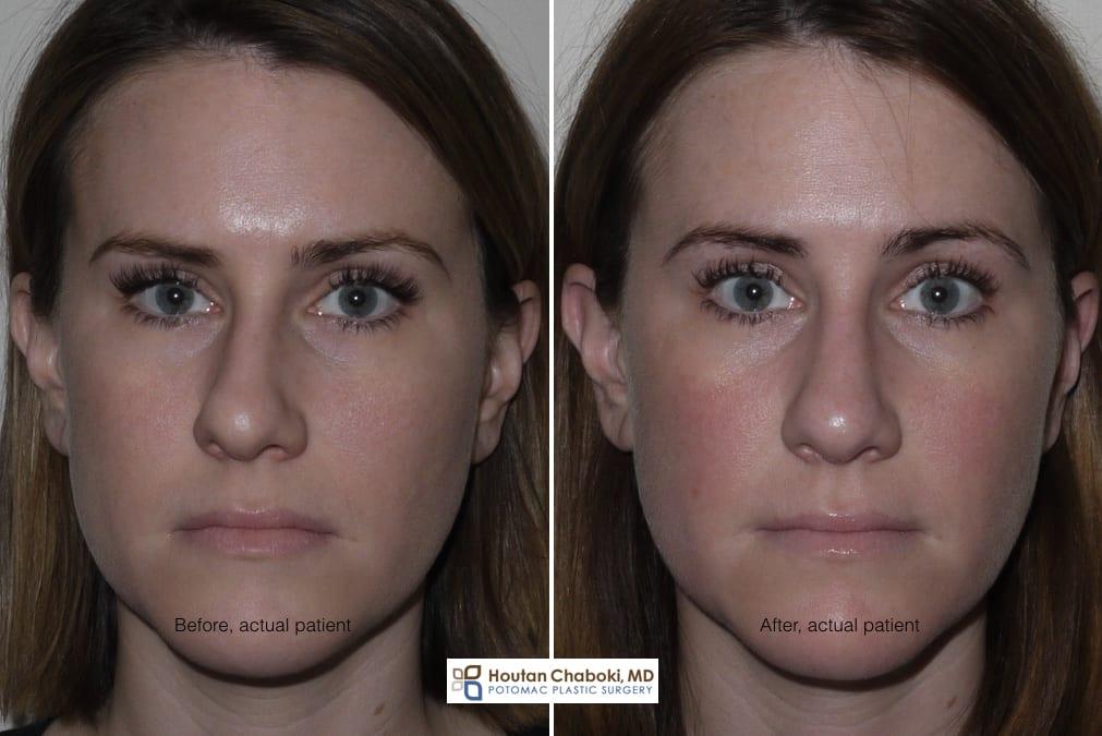 Blog post - before after rhinoplasty photos bone reshaping osteotomy DC