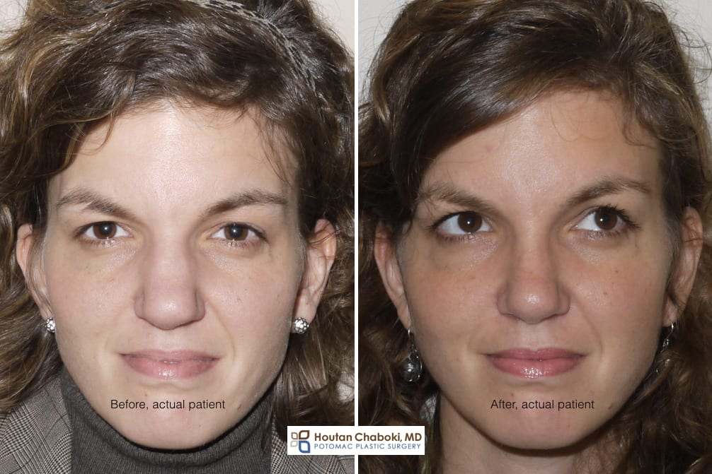 Blog post - before after rhinoplasty photos bone reshaping osteotomy DC