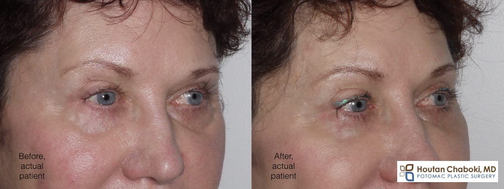 Blog post - photo before after lower eyelid cheek junction plastic surgery