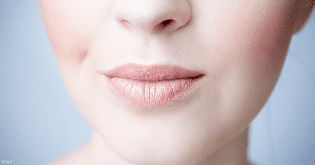 Upper lip lift surgery is better than injections for a long lip