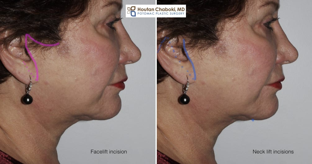 Blog post - facelift neck lift incisions cosmetic surgery