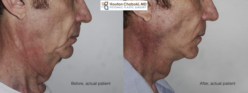 Blog post - before after male facelift neck lift photos
