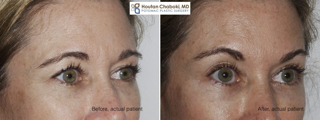 Nonsurgical Brow Lift With Botox Or Dysport
