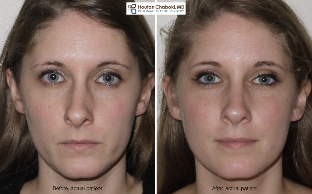 Blog post - before after broken nose repair septoplasty rhinoplasty front view