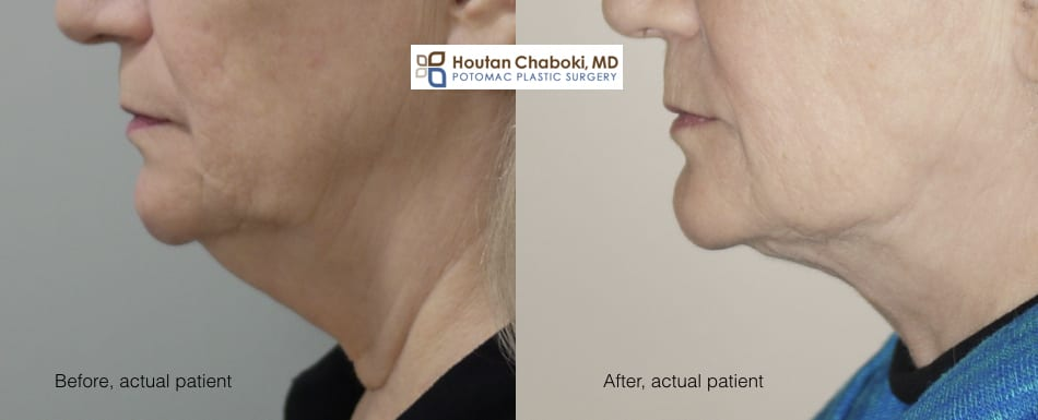 Blog post - before after photo neck lift liposuction smoking