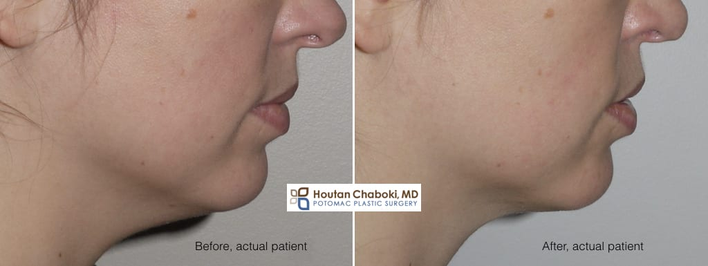Blog post - before after photos double chin neck liposuction
