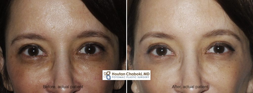 Blog post - before after photo Botox Dysport brow lift wrinkle face