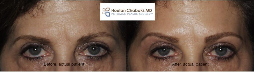 Blog post - before after Botox brow lift wrinkle forehead eyes facial plastic surgery