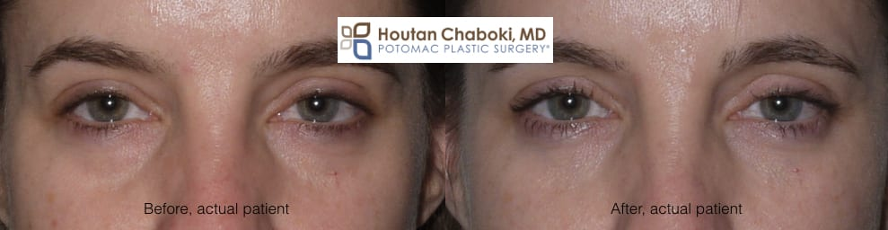 Blog post - lower eyelid bag dark circle facial filler blepharoplasty fat transfer