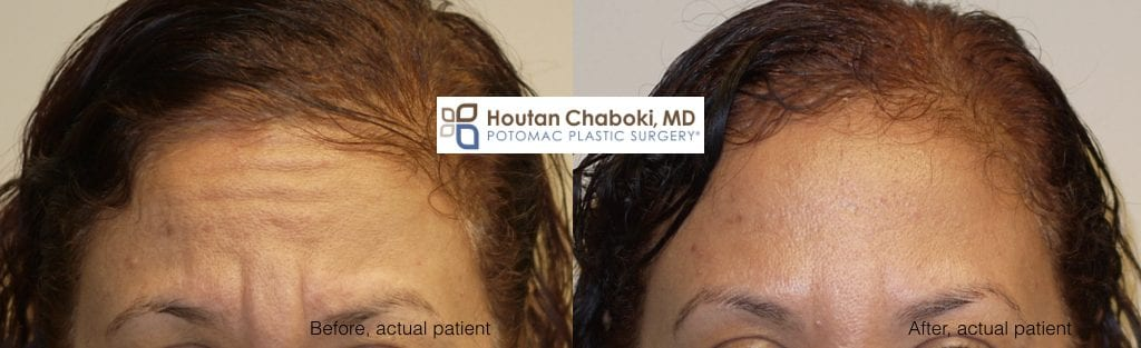 Blog post - before after Botox forehead lines wrinkles facial filler