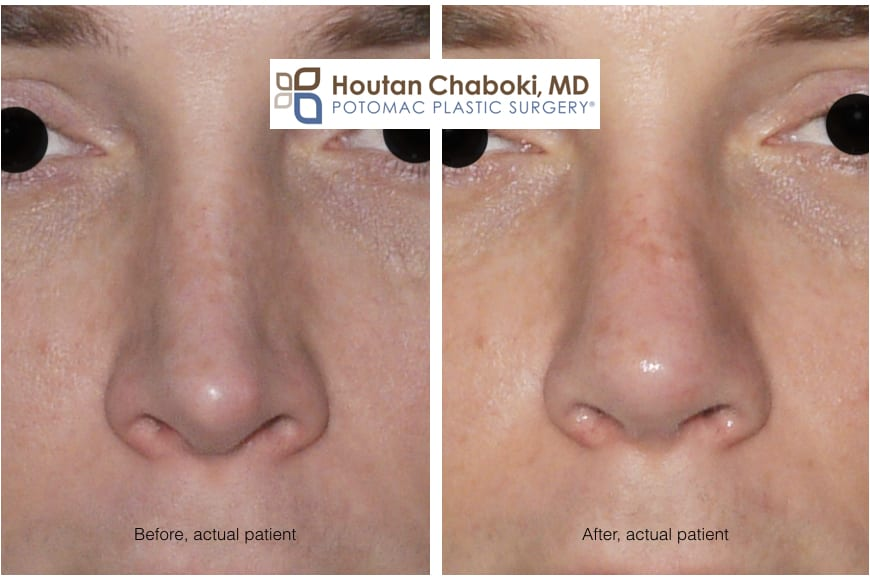 Blog post - before after closed rhinoplasty septoplasty open revision