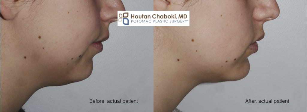 Blog post - before after neck lift facelift liposuction chin implant jawline double chin