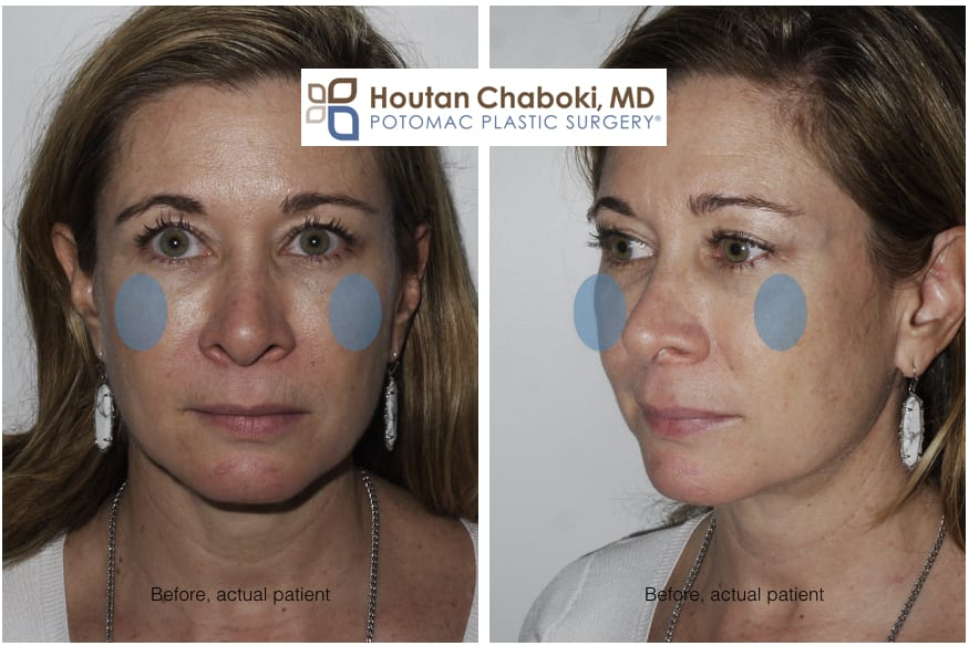Blog post - before after photos cheek augmentation facial filler Voluma Juvederm facial plastic surgery