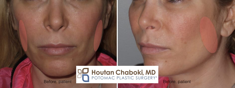 Blog post - before after photos Botox jaw reduction facial sculpting masseter muscle Dysport