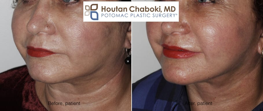 Blog post - before after photos fat transfer lips cheek facelift neck