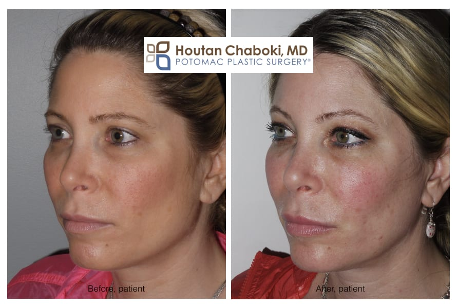 Blog post - before after photo facial filler Juvederm Volume Restylane cheek lip swelling liquid lift