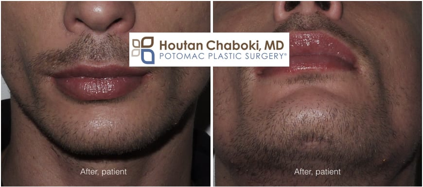 Blog post - before after photos chin augmentation silicone implant scar incision external