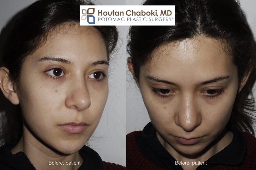 Blog post - before after photos cheek enhancement facial filler Juvederm Restylane