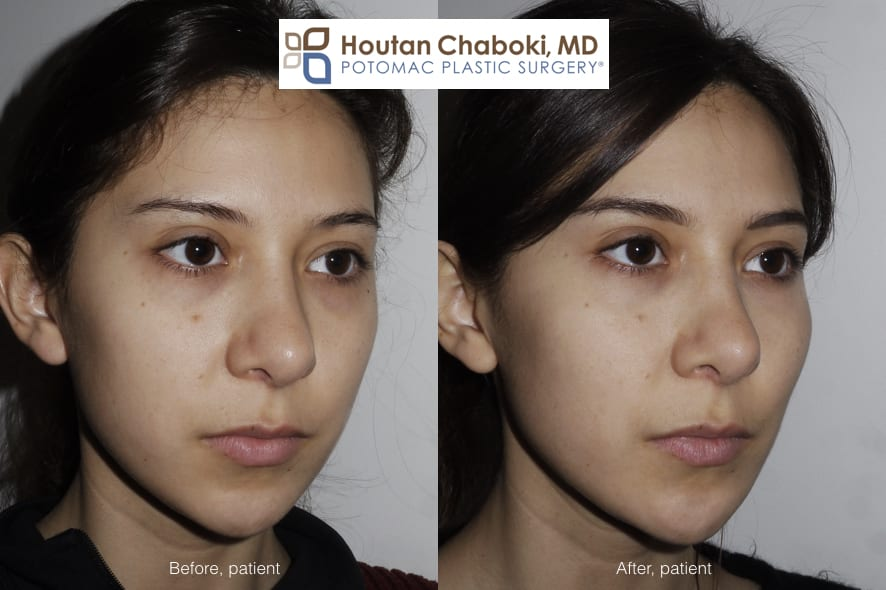 Blog post - before after photos cheek enhancement facial filler Juvederm Restylane