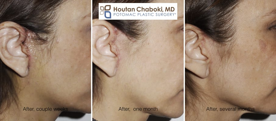 Blog post - before after photos mini lift facelift slift recovery healing swelling