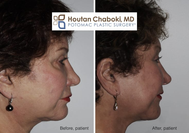 Blog post - before after year facelift neck lift fat transfer cheek