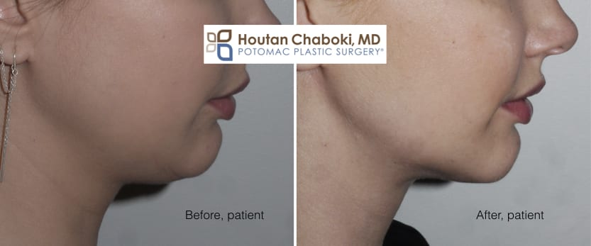 Blog post - before after photos chin liposuction double chin neck fat