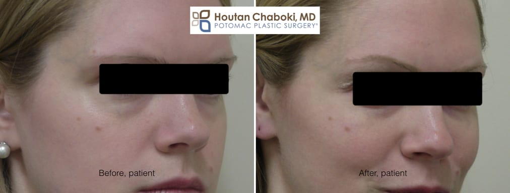 Blog post - before after photos eye bag dark circle facial filler Restylane Juvederm