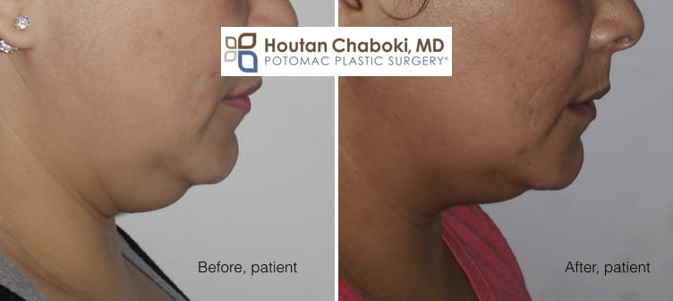 Blog post - photos before after Kybella double chin neck fat