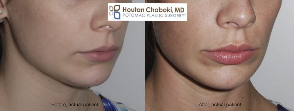 Blog post - before after lip injection photos Juvederm Botox swelling
