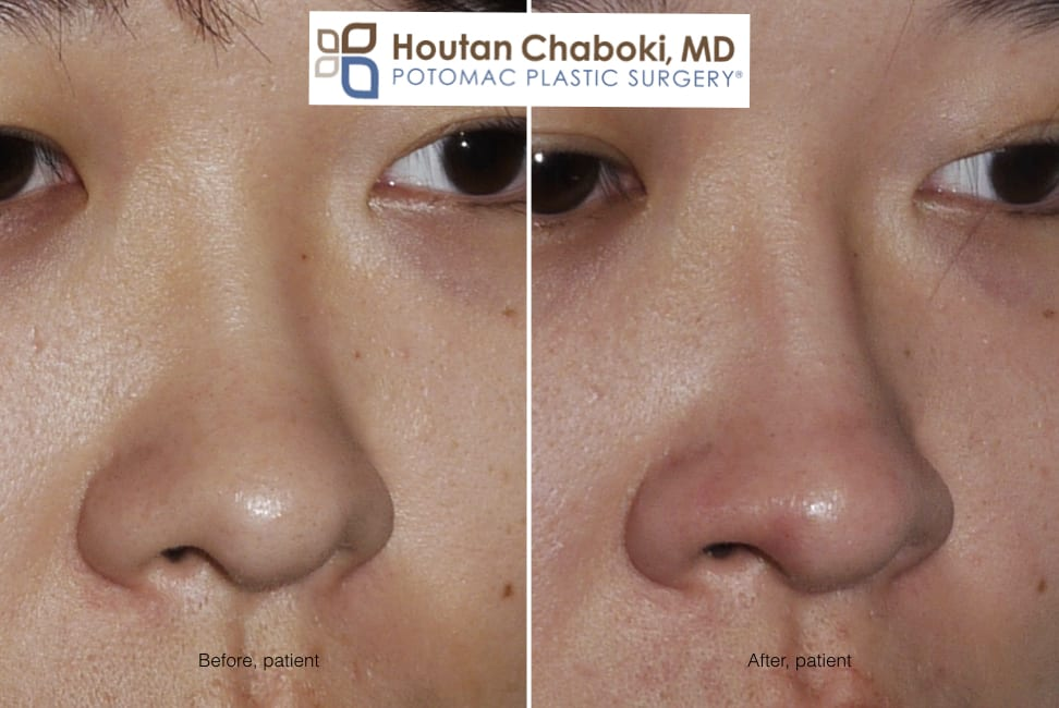 Blog post - before after photos dorsal augmentation build bridge nose cartilage filler