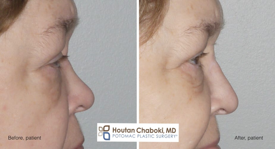 Blog post - before after photos dorsal augmentation build bridge nose cartilage filler