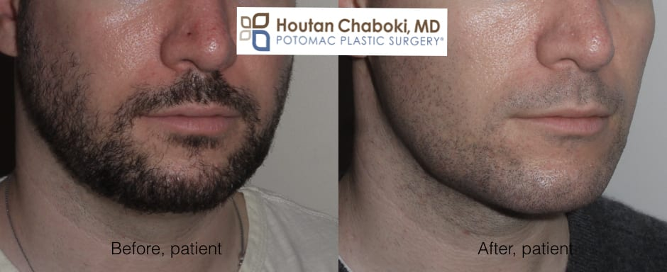 Blog post - photos before after facial plastc surgery men eyes brow eyelid neck chin facelift liposuction
