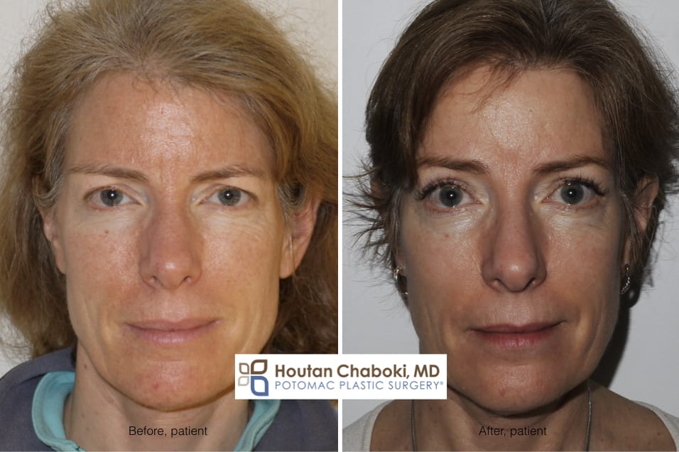 Blog post - before after photo brow lift forehead Botox frontalis muscle
