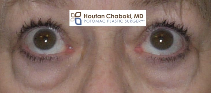 Blog post - photos thyroid eye bag blepharoplasty orbital decompression.001