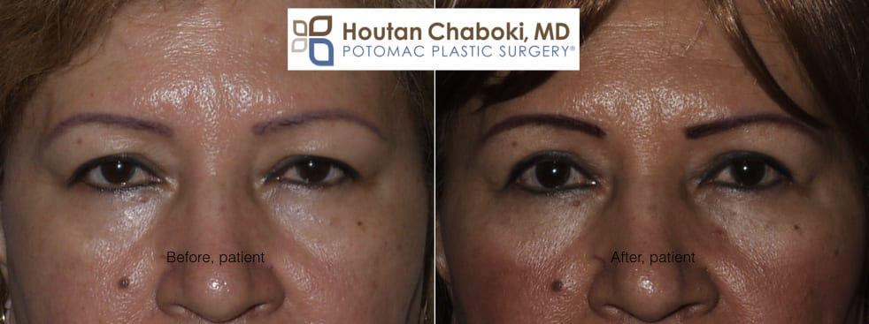 Blog post - before after photos upper eyelid surgery blepharoplasty wrinkles Asian double skin