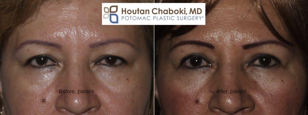 Blog post - before after photos upper eyelid surgery blepharoplasty wrinkles Asian double skin