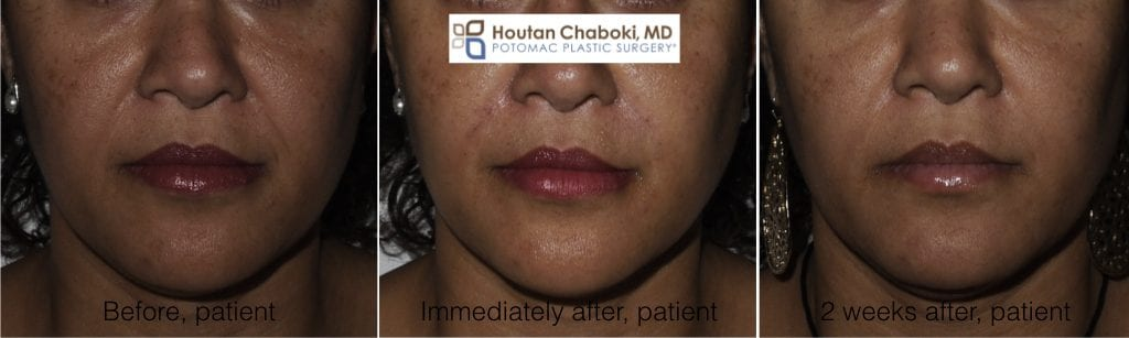 Blog post - before after smile line nasolabial fold filler liquid facelift Juvederm Belotero Restylane