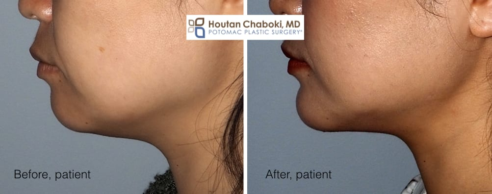 Blog post - before after chin surgery augmentation implant neck lift liposuction facelift