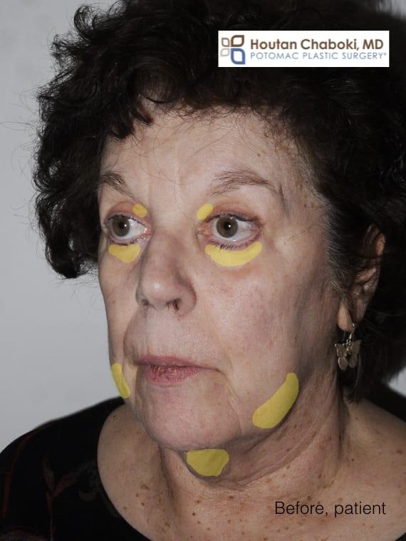 Blog post - facial fat gain neck double chin jowl eye bag