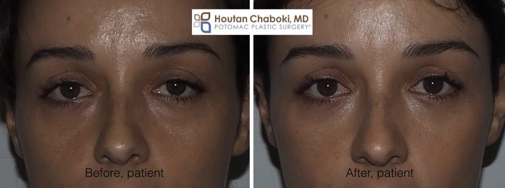 Blog post - before after photos nonsurgical eyelid rejuvenation lower filler Botox Dysport