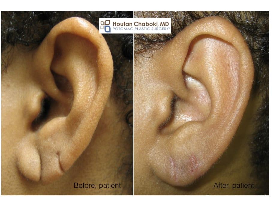 Blog post - before after split earlobe repair Chaboki Washington DC