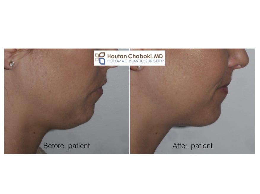 Blog post - 3 stitch neck lift liposuction double chin