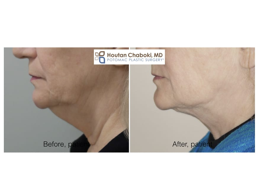 Blog post - 3 stitch neck lift liposuction double chin