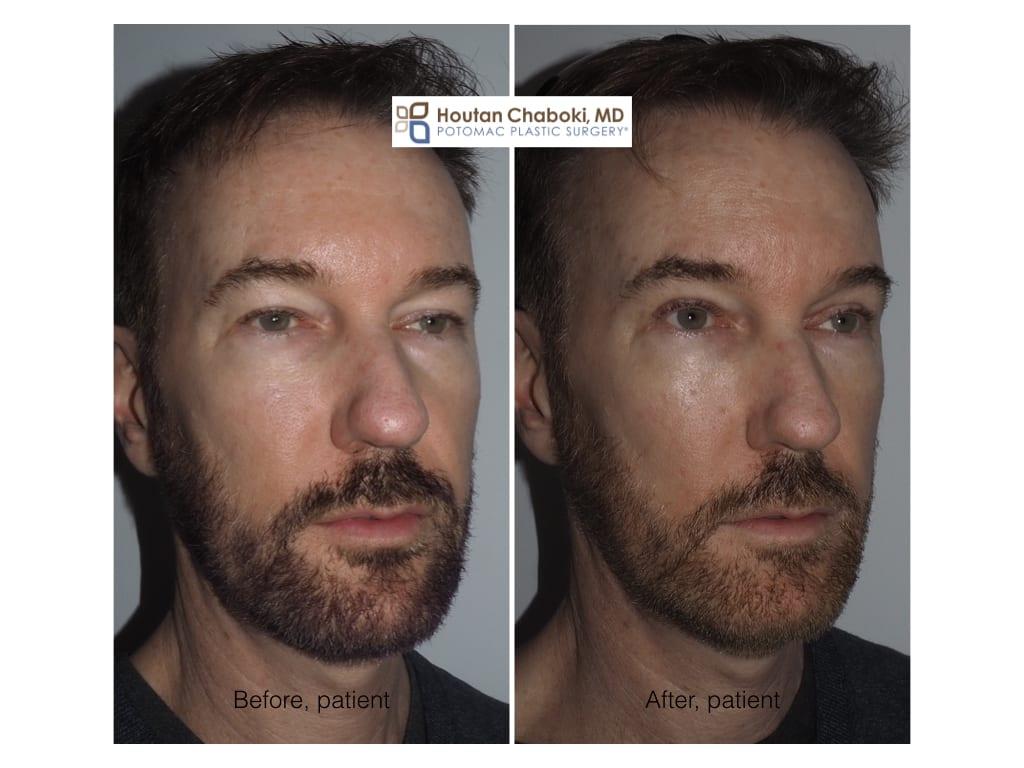 Blog post - eye rejuvenation eyelid surgery men male eye bag