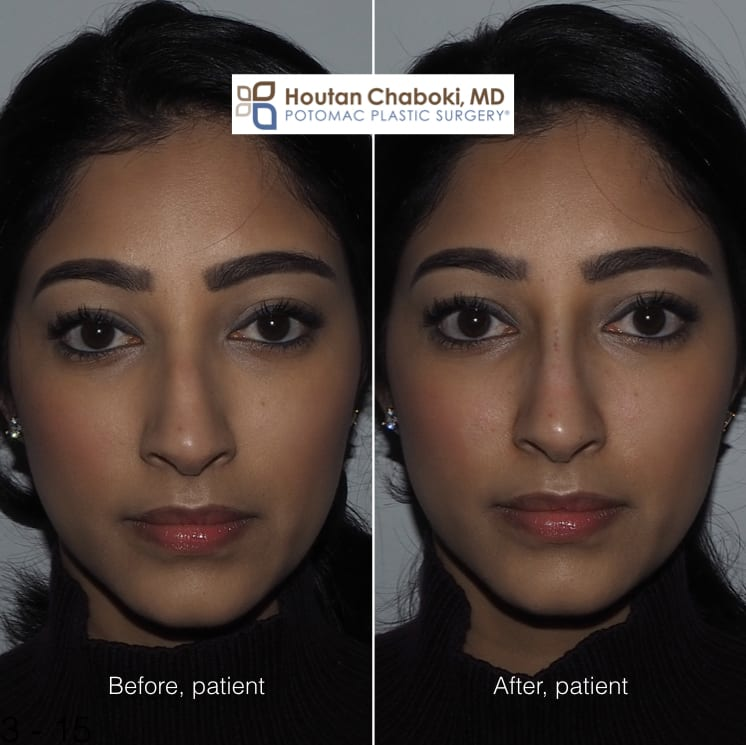 Blog post - photos before after filler injection nose job nonsurgical rhinoplasty bump