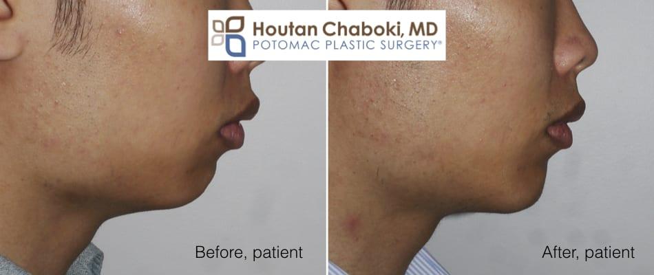 Blog post - before after chin augmentation implant potomac plastic surgery Washington DC Chaboki